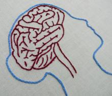 embroidered outline of female brain